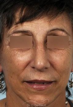 Chirurgie nez cassé sur peau mature vue de face apres