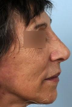 Chirurgie nez cassé sur peau mature vue de profil apres