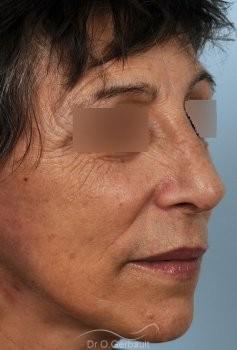Chirurgie nez cassé sur peau mature vue de quart apres