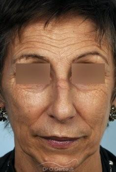 Chirurgie nez cassé sur peau mature vue de face avant