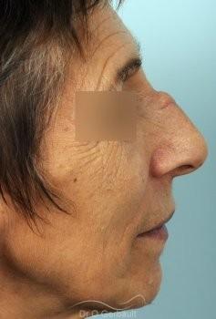 Chirurgie nez cassé sur peau mature vue de profil avant