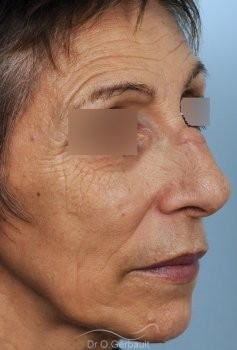 Chirurgie nez cassé sur peau mature vue de quart avant