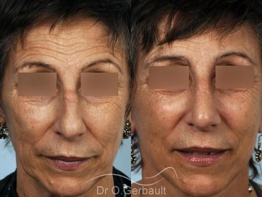 Chirurgie nez cassé sur peau mature vue de face duo