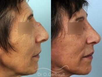 Chirurgie nez cassé sur peau mature vue de profil duo