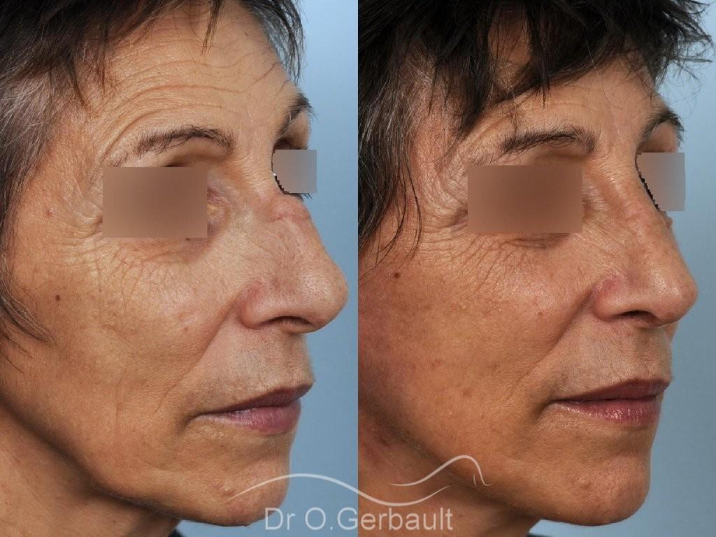 Chirurgie nez cassé sur peau mature vue de quart duo