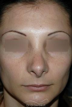 Columelle pendante, rétraction des ailes du nez vue de face avant