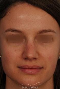 Correction de nez avec forte bosse vue de face apres