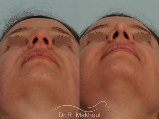Correction de nez avec forte bosse vue de face avant-apres