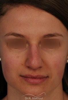 Correction de nez avec forte bosse vue de face avant