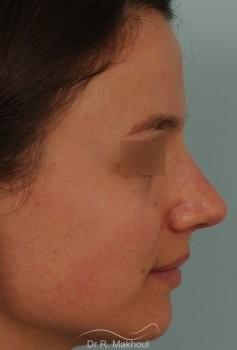 Correction de nez avec forte bosse vue de profil apres