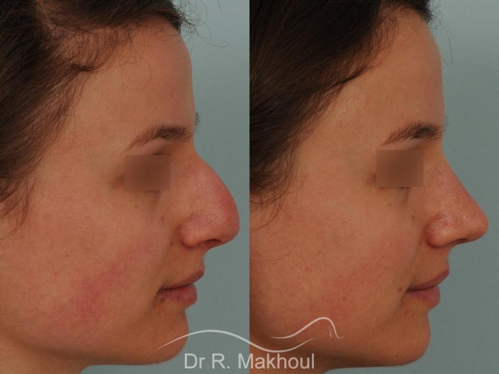 Correction de nez avec forte bosse vue de profil avant-apres