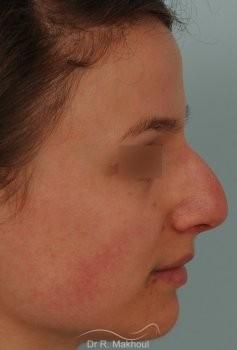 Correction de nez avec forte bosse vue de profil avant