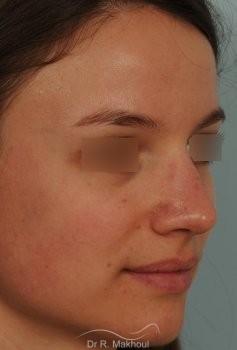 Correction de nez avec forte bosse vue de quart apres