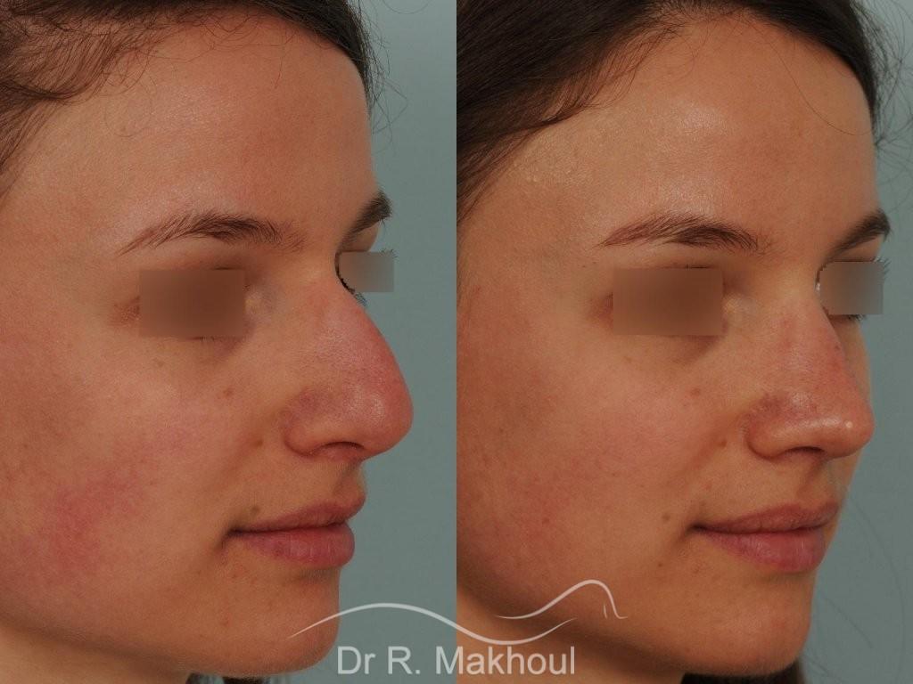 Correction de nez avec forte bosse vue de quart avant-apres