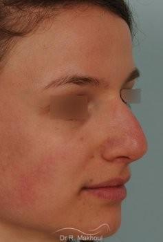 Correction de nez avec forte bosse vue de quart avant