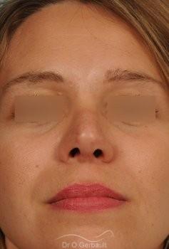Correction de pointe de nez en Rhinoplastie secondaire vue de face apres