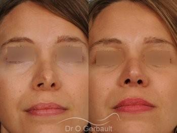 Correction de pointe de nez en Rhinoplastie secondaire vue de face avant-apres