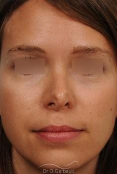Correction de pointe de nez en Rhinoplastie secondaire vue de face avant