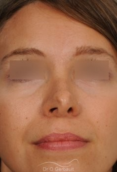 Correction de pointe de nez en Rhinoplastie secondaire vue de face avant
