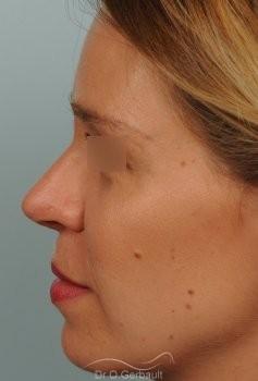 Correction de pointe de nez en Rhinoplastie secondaire vue de profil apres