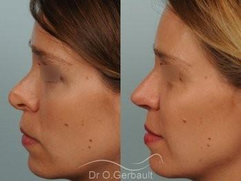Correction de pointe de nez en Rhinoplastie secondaire vue de profil avant-apres