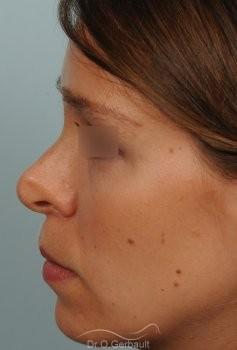 Correction de pointe de nez en Rhinoplastie secondaire vue de profil avant