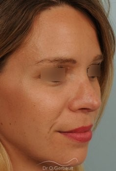 Correction de pointe de nez en Rhinoplastie secondaire vue de quart apres