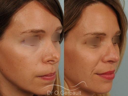 Correction de pointe de nez en Rhinoplastie secondaire vue de quart avant-apres
