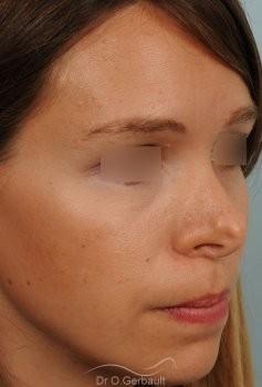 Correction de pointe de nez en Rhinoplastie secondaire vue de quart avant