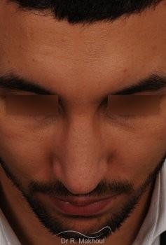Correction d'un nez très dévié avec bosse importante vue de face apres