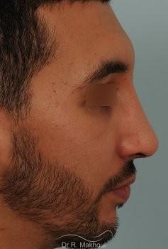 Correction d'un nez très dévié avec bosse importante vue de profil apres