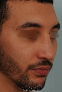 Correction d'un nez très dévié avec bosse importante vue de quart apres