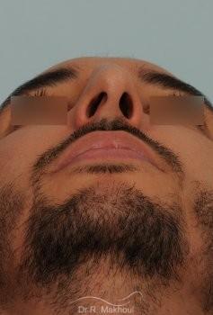 Correction d'un nez très dévié avec bosse importante vue de face avant