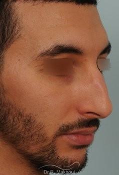 Correction d'un nez très dévié avec bosse importante vue de quart avant