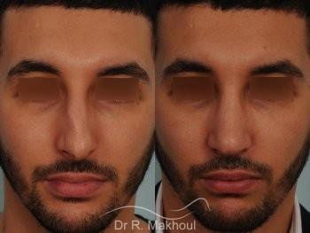 Correction d'un nez très dévié avec bosse importante vue de face duo