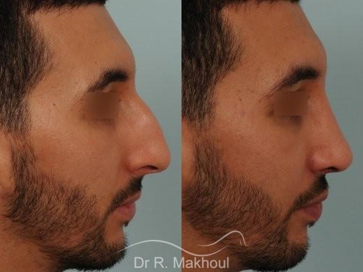 Correction d'un nez très dévié avec bosse importante vue de profil duo