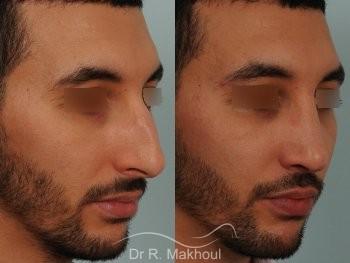 Correction d'un nez très dévié avec bosse importante vue de quart duo