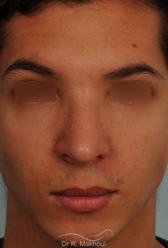 Correction d'une bosse sur le profil vue de face apres