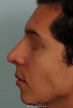 Correction d'une bosse sur le profil vue de profil apres