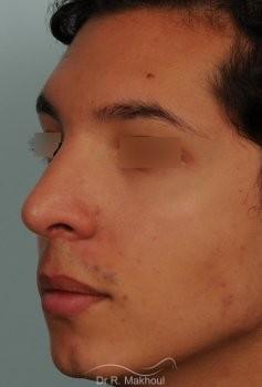 Correction d'une bosse sur le profil vue de quart apres