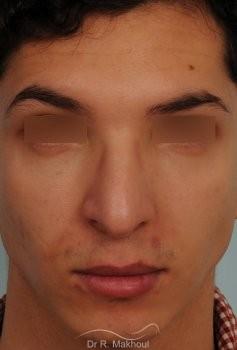 Correction d'une bosse sur le profil vue de face avant