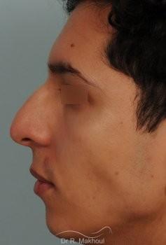 Correction d'une bosse sur le profil vue de profil avant