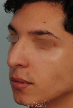Correction d'une bosse sur le profil vue de quart avant