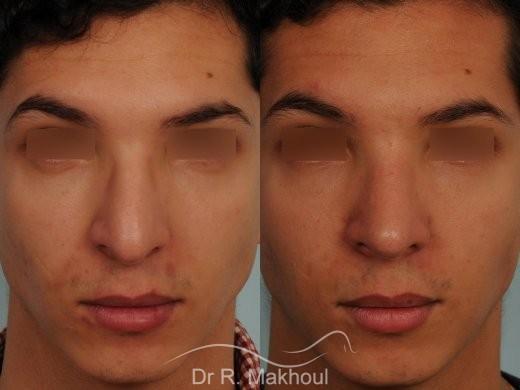 Correction d'une bosse sur le profil vue de face duo