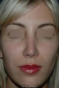 Rhinoplastie secondaire, Remodelage des ailes de nez vue de face apres