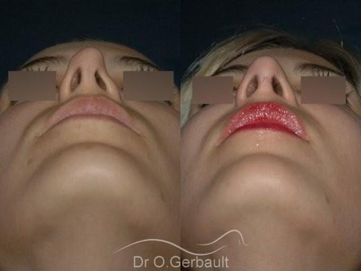 Rhinoplastie secondaire, Remodelage des ailes de nez vue de face avant-apres