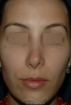 Rhinoplastie secondaire, Remodelage des ailes de nez vue de face avant