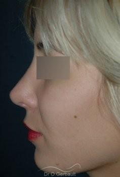 Rhinoplastie secondaire, Remodelage des ailes de nez vue de profil apres