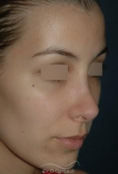 Rhinoplastie secondaire, Remodelage des ailes de nez vue de quart avant