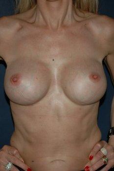 Correction mammaire vue de face apres